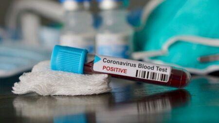 pemeriksaan coronavirus